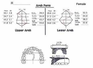 歯列弓の長径と幅径の計測