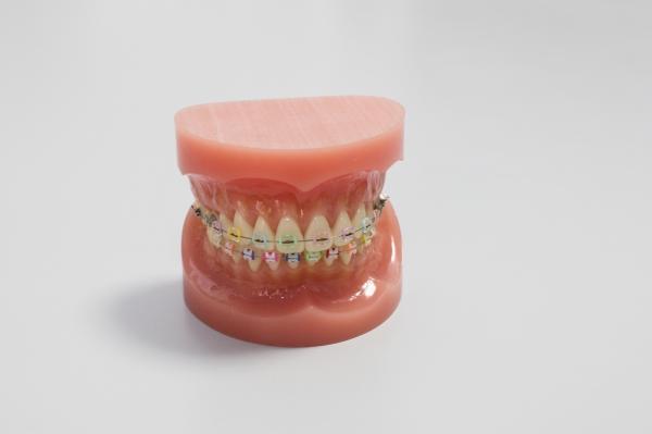 歯並びに良くない癖(習慣)への注意事項